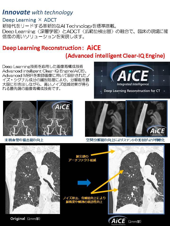 CT撮影装置更新3.JPG