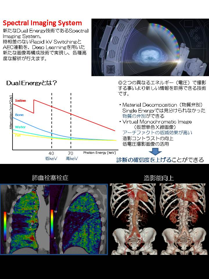 CT撮影装置更新4.JPG
